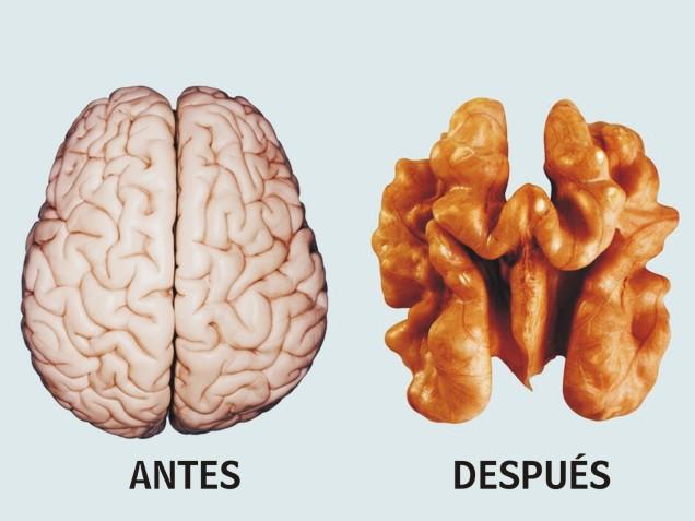 ANTES DESPUES